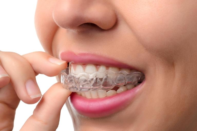 woman putting in clear aligner l orthodontics clifton hill vic