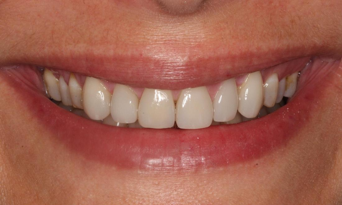 Image of smile after porcelain veneers