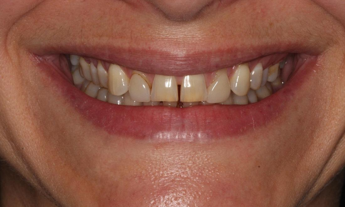Image of smile before porcelain veneers