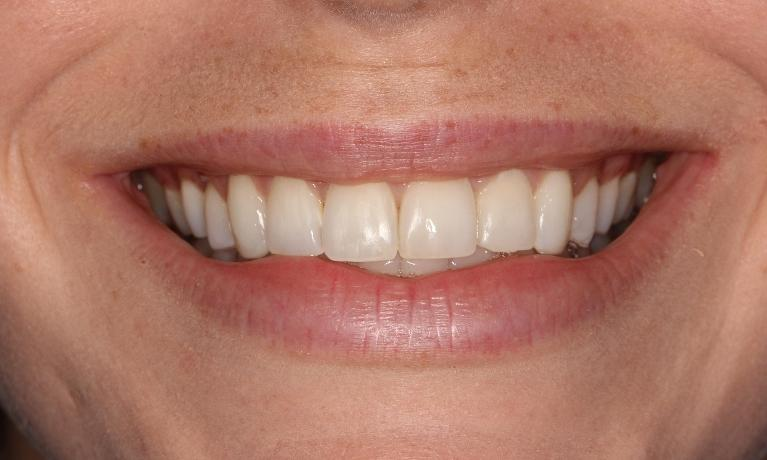 Orthodontic-Case-After-Image