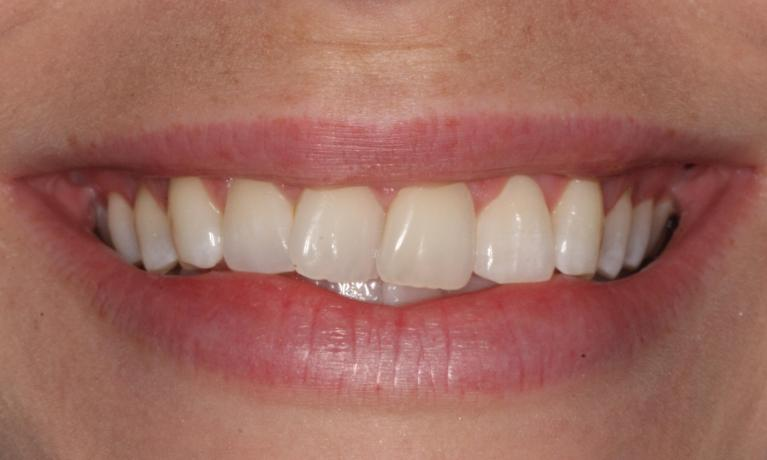 Orthodontic-Case-Before-Image